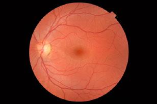 Evaluación retinográfica del polo posterior