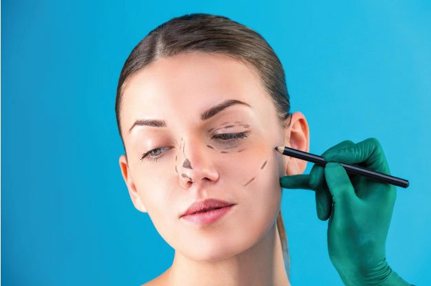 Blefaroplastia inferior en Madrid