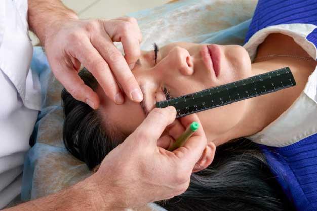 Blefaroplastia superior en Madrid