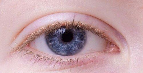 Derrame en un ojo, como curarlo