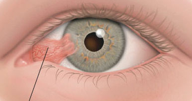 Tratamiento de Pterigium en el ojo