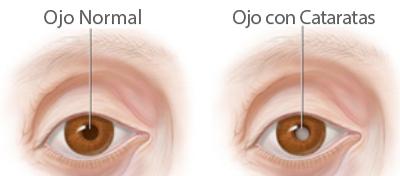 Síntomas de las cataratas en los ojos